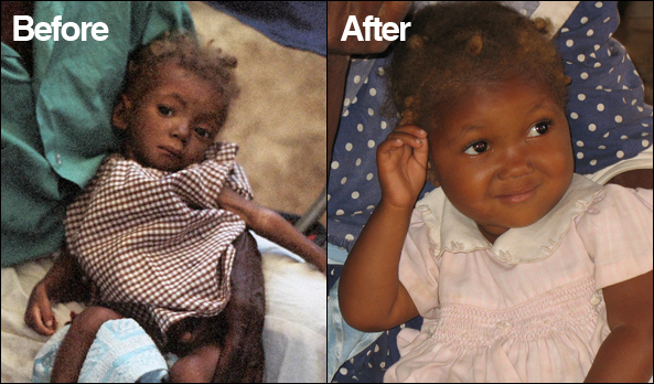 Michelle's transformation after receiving deworming medication is astonishing!
