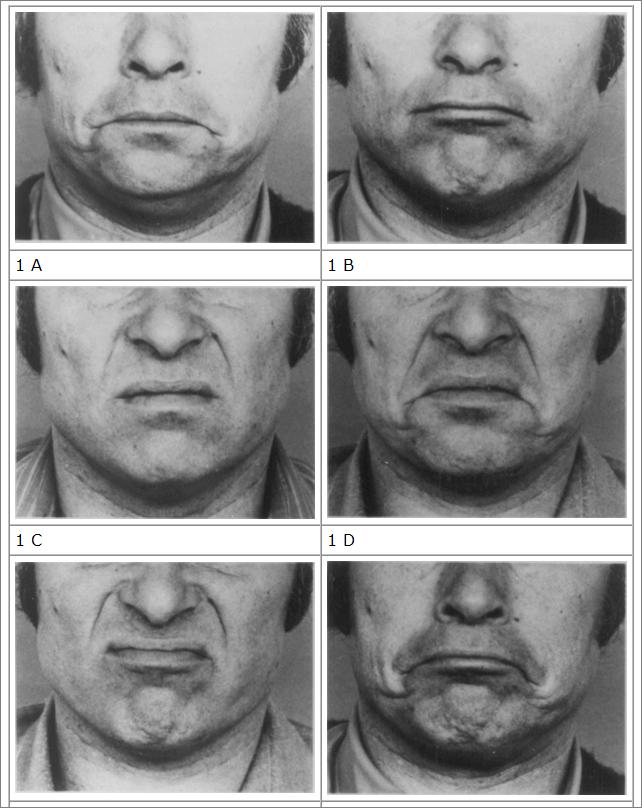 facial movements from Ekman and Friesen's FACS publication