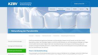 Behandlung der Parodontitis - KZBV