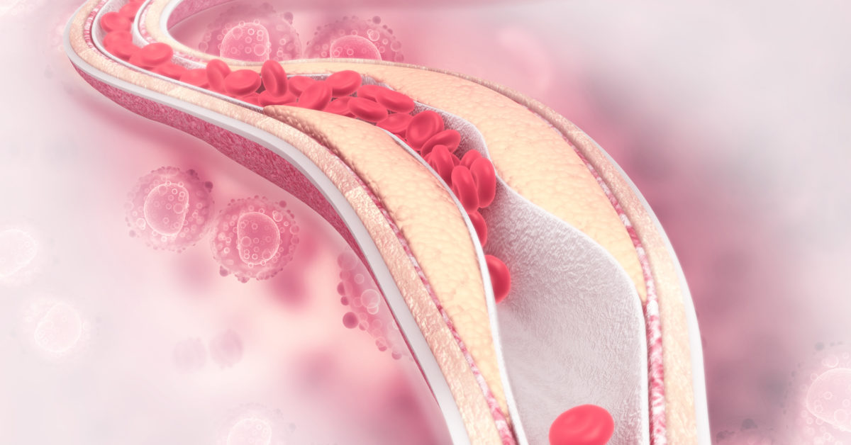 Atherosclerosis rapidly develops between ages 40 to 50, research shows