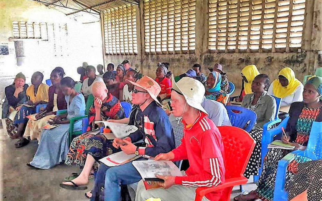 People With Albinism Communities Program – Tanzania